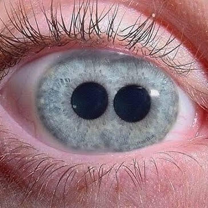 Двойной зрачок в глазу (pupula duplex): причины отклонения, как видят такие люди