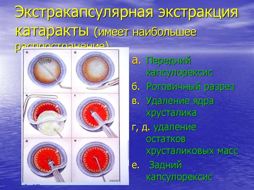 Интракапсулярная экстракция катаракты