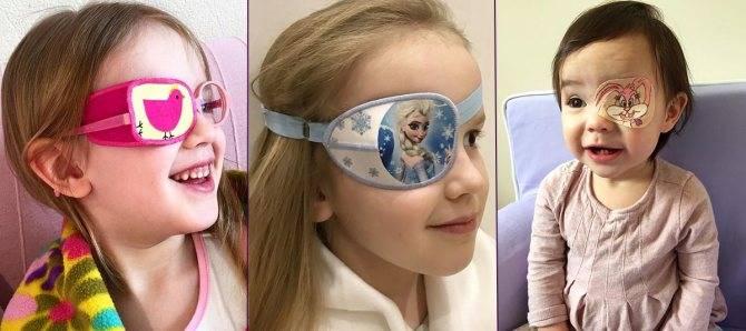 Пластырь для глаз: для чего он нужен и какой выбрать для своего ребенка