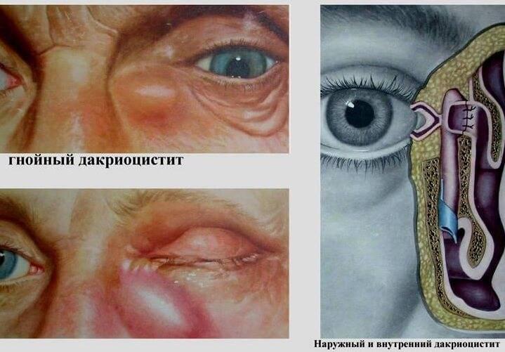 Воспаление слезного канала (дакриоцистит у взрослых): лечение, причины, симптомы (фото), диагностика, виды