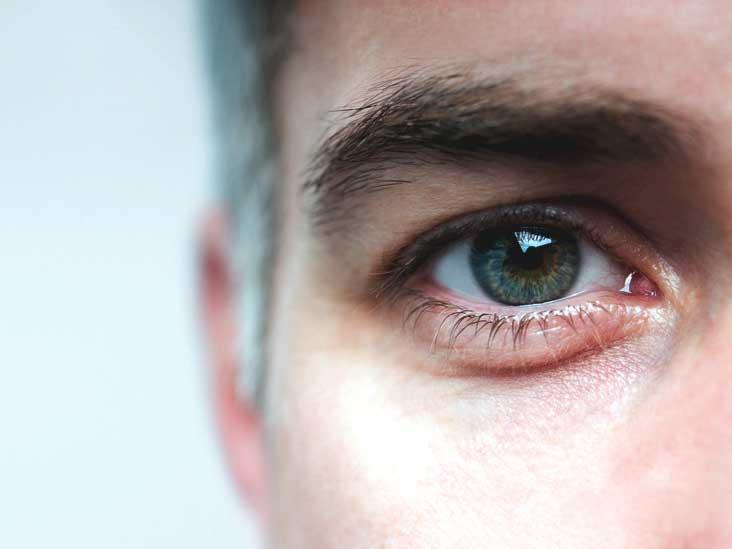 Причины и симптомы факосклероза хрусталика глаза