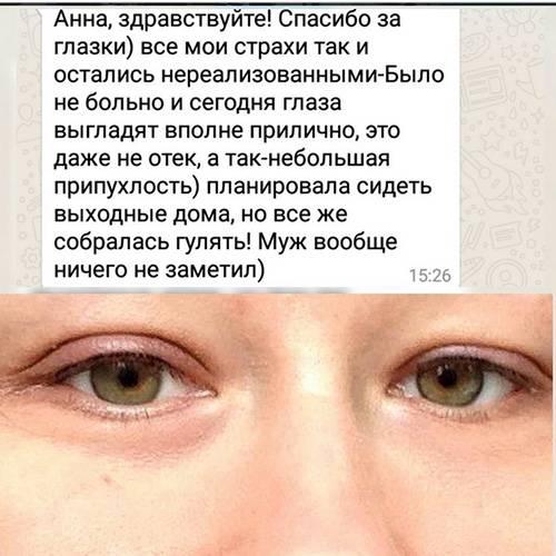 Как быстро снять отек с глаз, причины опухоли под глазами
