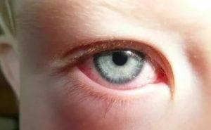 Увеит глаз— симптомы илечение