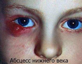 Как выглядит абсцесс кожи — симптомы, фото до операции