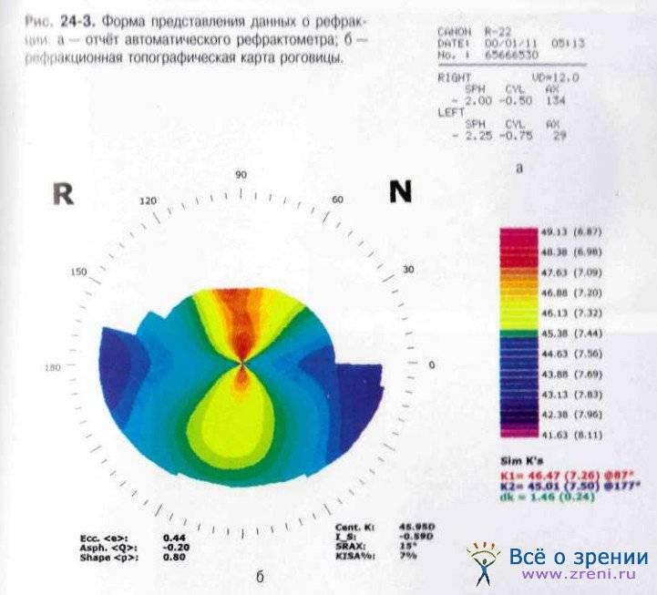 Что такое кератометрия (офтальмометрия)