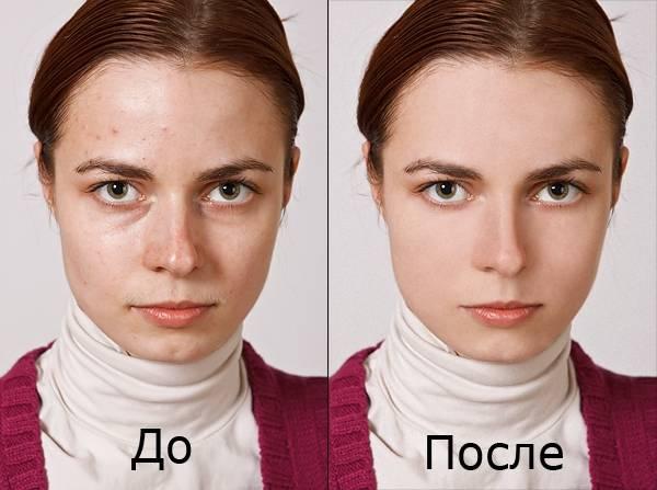 Мешки под глазами: причины и лечение
