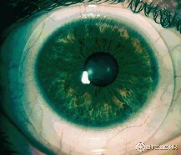 Склеральные линзы с диоптриями | глазной.ру