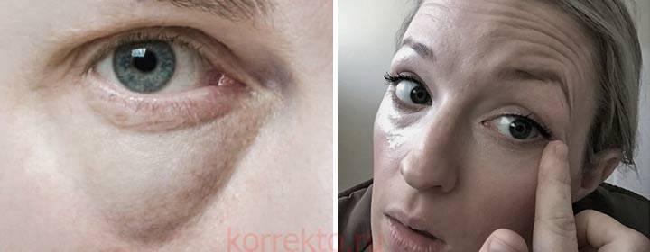 Почему появляются грыжи под глазами и можно ли от них избавиться без операции?