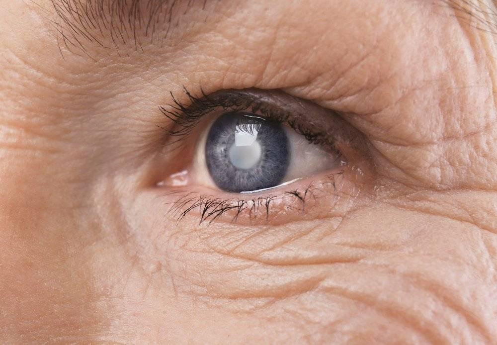 Катаракта: лечение, виды, причины, симптомы (фото), диагностика, профилактика, что это такое