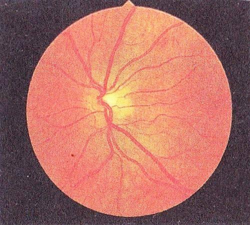 Ретинопатия недоношенных: как сохранить зрение?