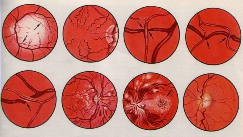 Ангиосклероз сетчатки глаза: что это такое, лечение, капли, код по мкб 10