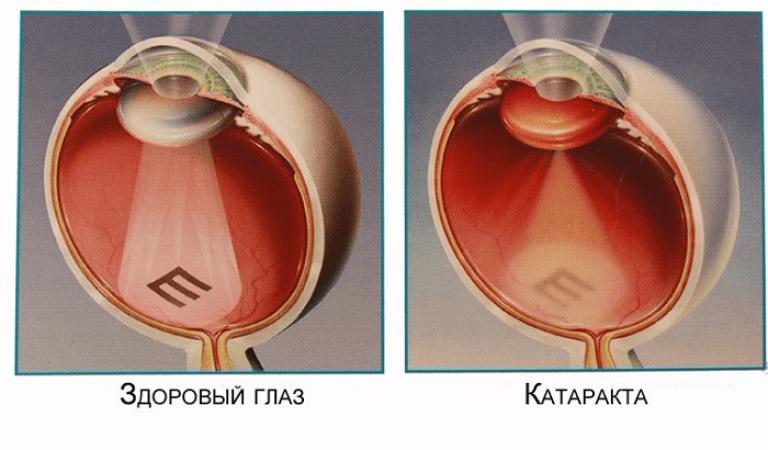 Заболевания хрусталика.катаракты.