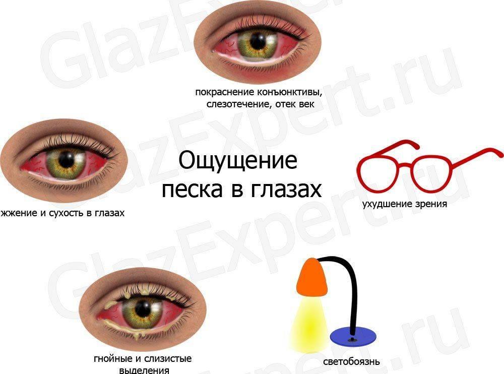 С какими заболеваниями связана белая пелена перед глазами