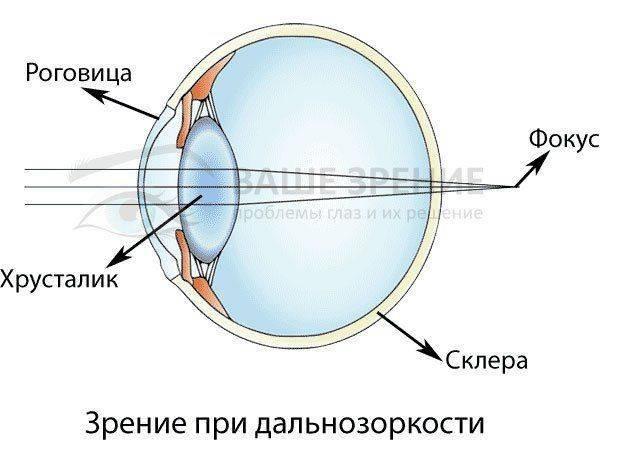 Дальнозоркость: это плюс или минус, если зрение вблизи нечеткое, чем отличается от близорукости