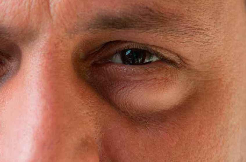 Надоедливые синяки под глазами: причины и лечение у мужчин