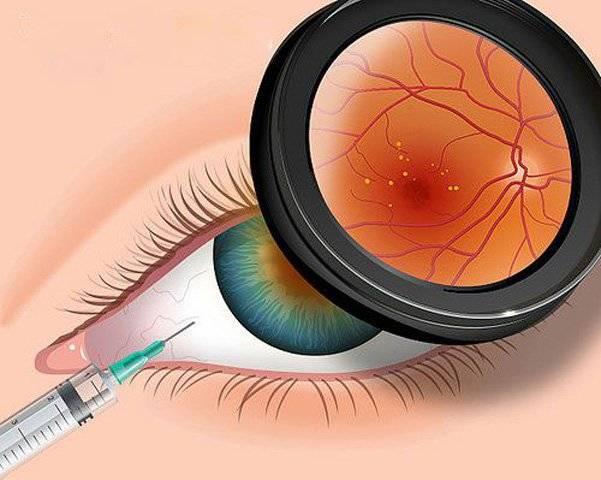 15 лучших витаминов для глаз. рейтинг 2020
