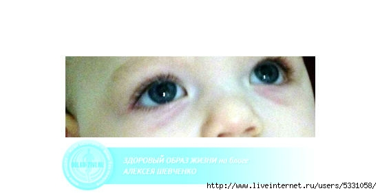 Почему появляются мешки под глазами у ребенка и как этого избежать
