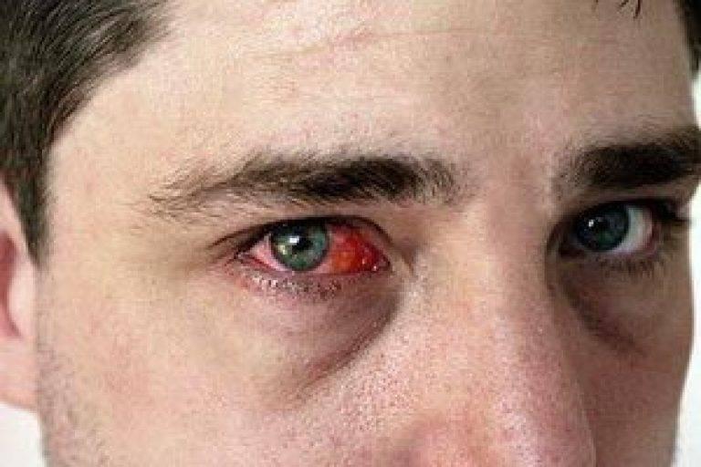 Основные причины почему лопаются сосуды в глазах и что делать