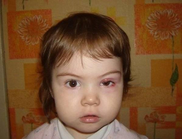 Ячмень на глазу заразен или нет