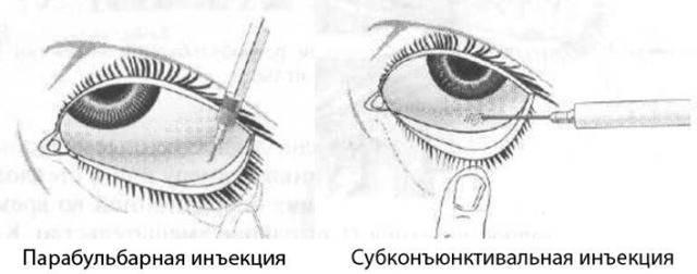 Ещё один миф про инъекционные процедуры: игла против канюли. в чем подвох?