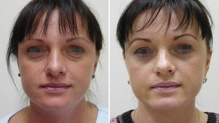 Нижние веко грыжа - лечение без операции, удаление, как убрать жировой мешок под глазами