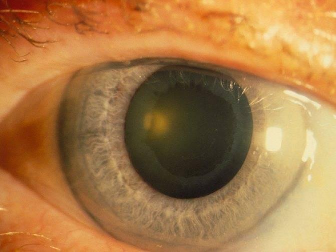 Изменения внутриглазного давления.глаукома.