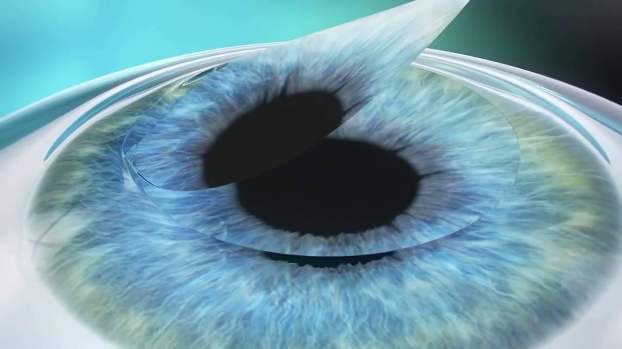 Лазерная коррекция зрения методом super lasik (супер ласик)