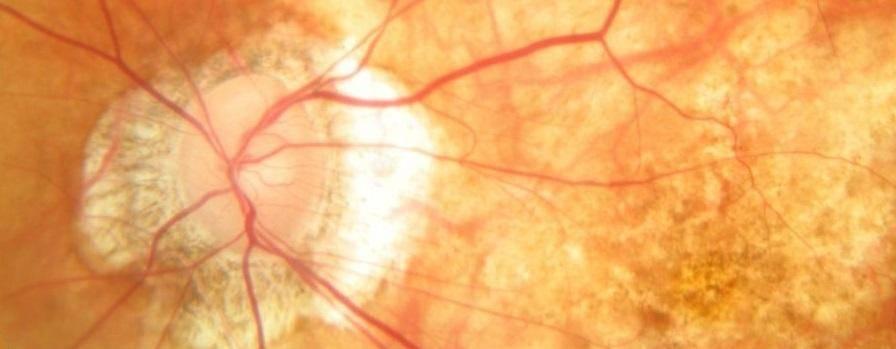 Ложная и истинная миопическая стафилома сетчатки глаза