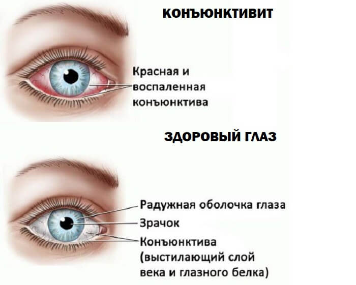 От чего чаще всего бывает боль в глазном яблоке?