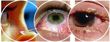 Аллергия на глазах: симптомы, причины, а также лечение