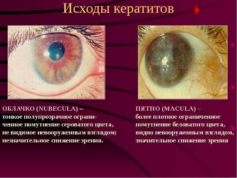 Герпетический кератит глаза: симптомы и лечение