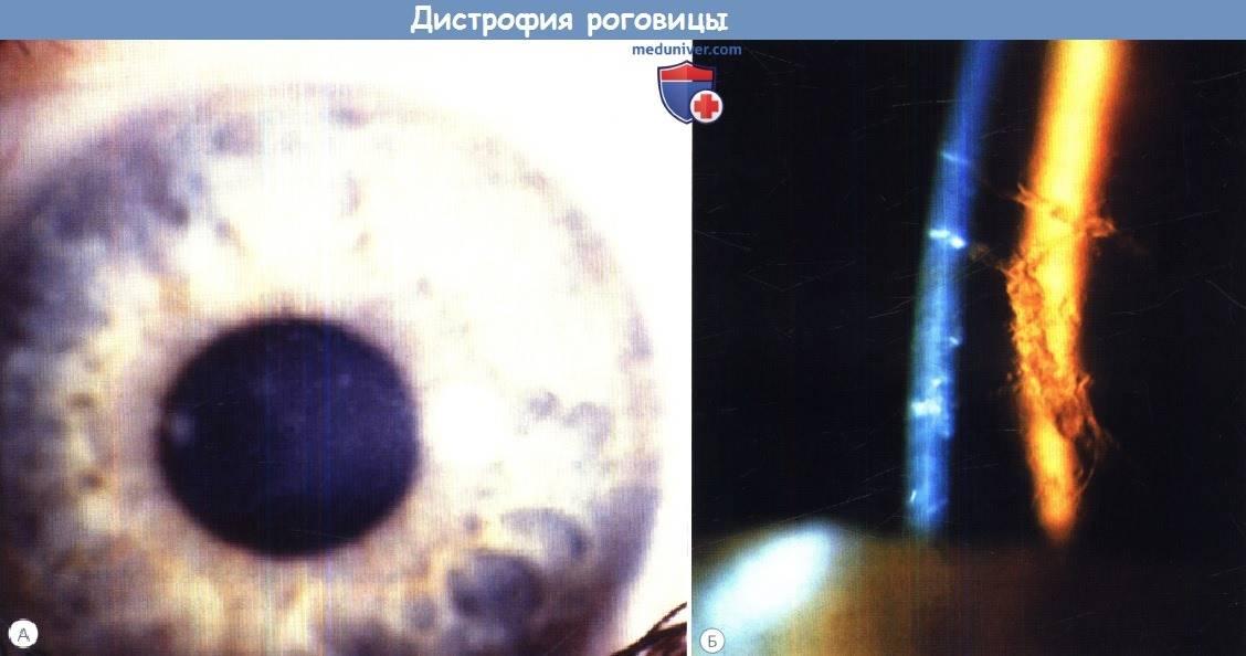 Дистрофии роговицы глаз: типы, симптомы, причины, лечение