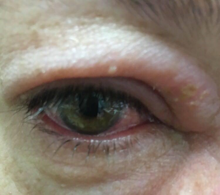 Вирусные заболевания глаз: симптомы, причины, методы лечения, отзывы