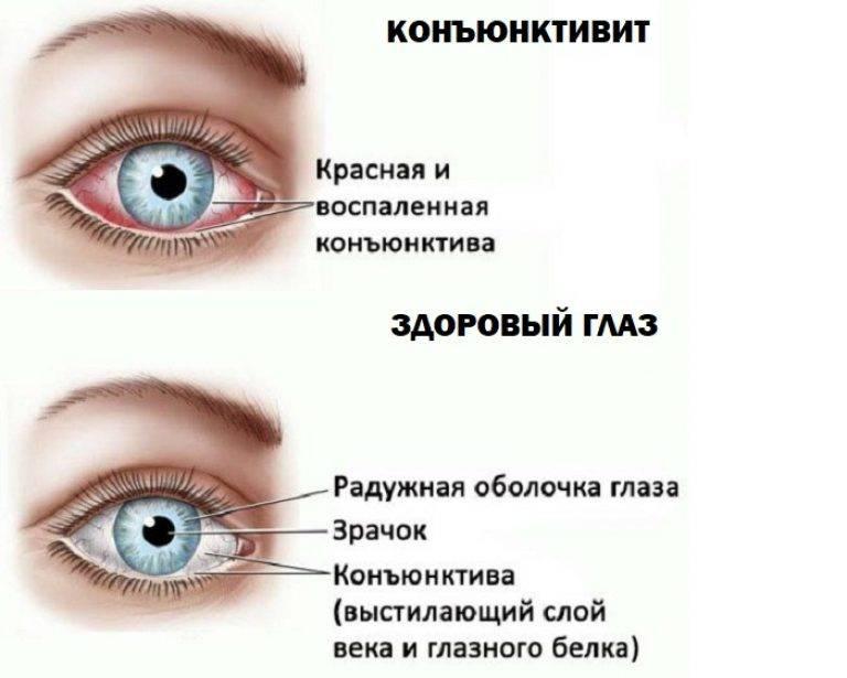 Покраснение глаз, причины и как избежать