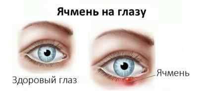 Болит голова больно двигать глазами