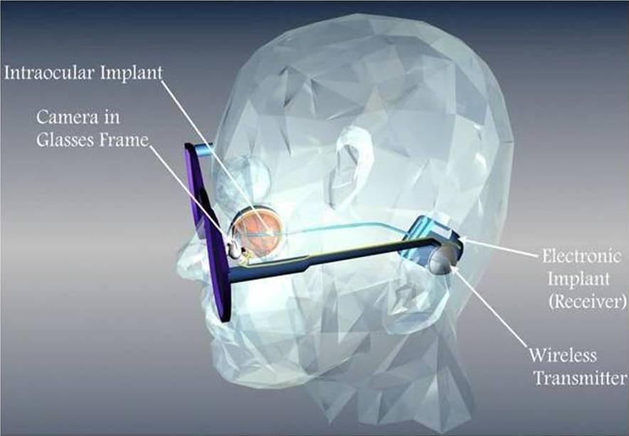 Бионический глаз – мифы и реальность