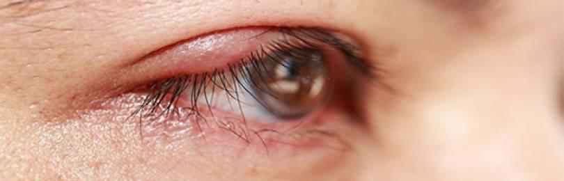 Блефарит – фото, симптомы и лечение у взрослых и детей, виды заболевания