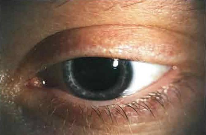 Мидриаз зрачка: причины, лечение медикаментозного и травматического мидриаза глаз