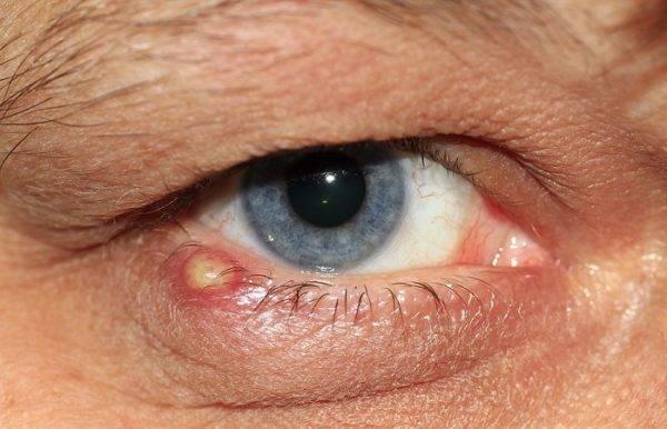 Гноятся глаза у взрослого - чем лечить воспалительный процесс?