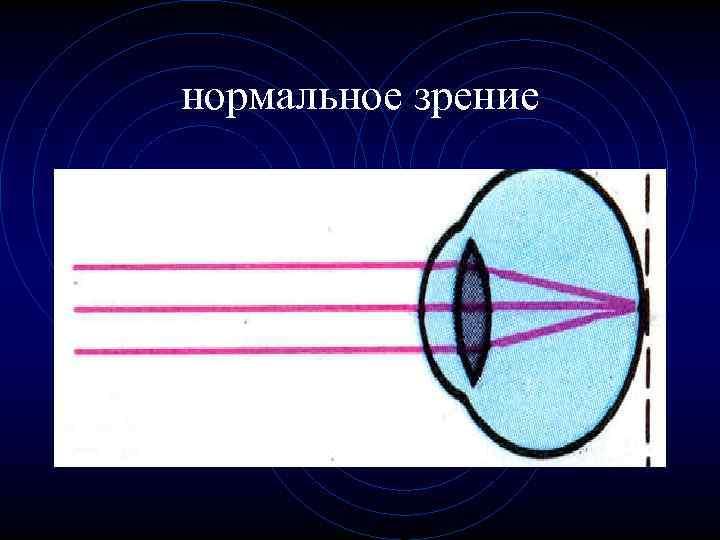 Нормальное зрение у человека