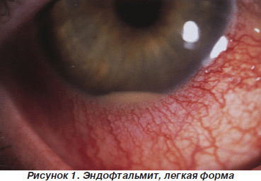 Эндофтальмит: причины, симптомы и лечение