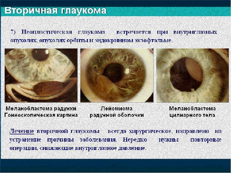 Вторичная глаукома: причины, симптомы, лечение, что это такое, виды (неоваскулярная, факолитическая, увеальная), диагностика, профилактика