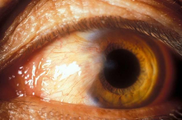 Птеригиум, фото и описание птеригиума, признаки, симптомы, лечение.