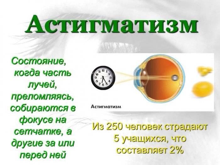 Причины нечеткого зрения: временные явления, болезни глаз, лечение, видео сайт «мы о здоровье»