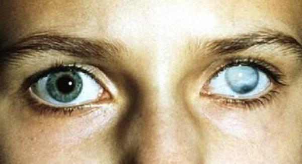 Бельмо на глазу: у человека, причины, как лечить