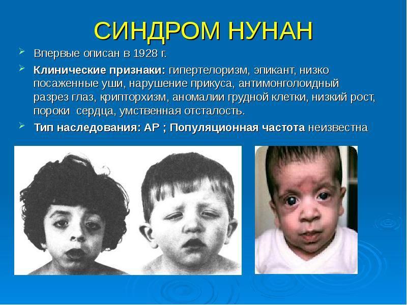 Гипертермия - что это такое за синдром, проявления, методы лечения, последствия и осложнения
