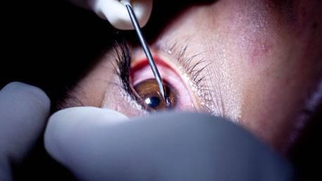Как делают уколы в глаза при дистрофии сетчатки и как оформить процедуру по квоте вмд?
