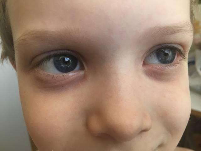 У ребенка мешки под глазами: причины и что делать