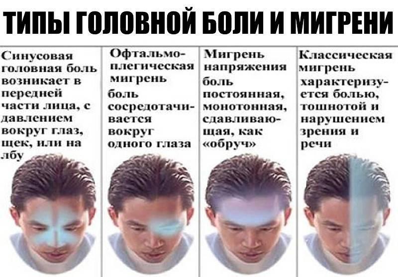 Почему болит глаз и голова с левой стороны