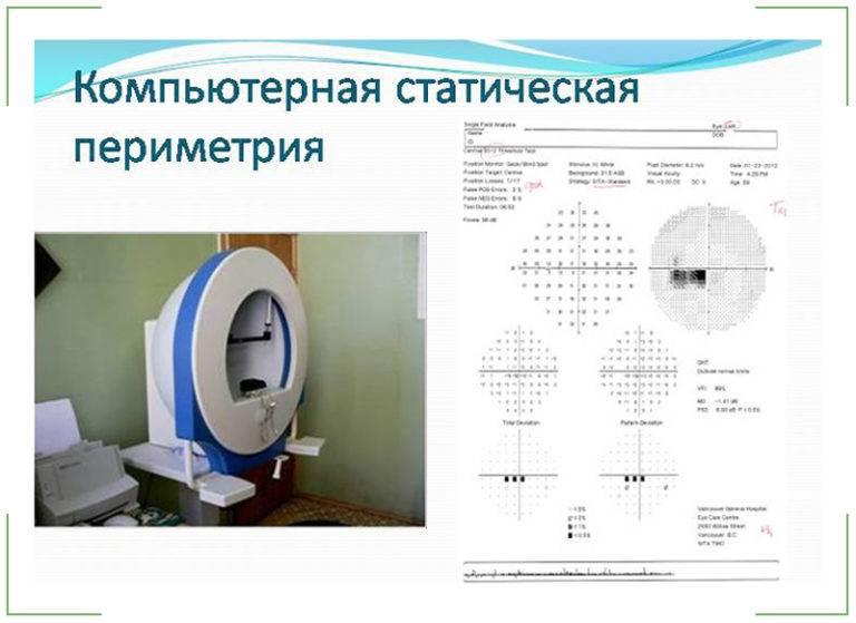 Оптическая когерентная томография глаза (окт): как проводится, расшифровка результатов и стоимость